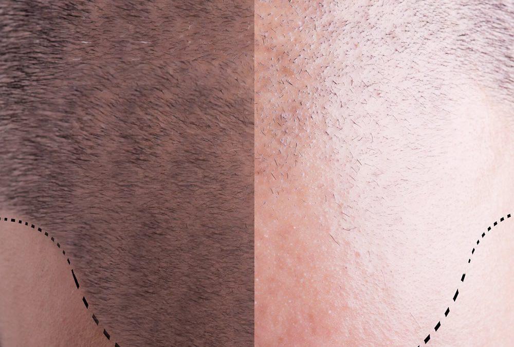 Peaky Hairlines